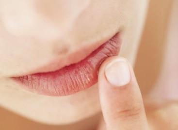 Lábios secos podem ser tratados com Bepantol e camomila