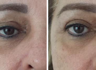 Novidade para rejuvenescimento facial e corporal