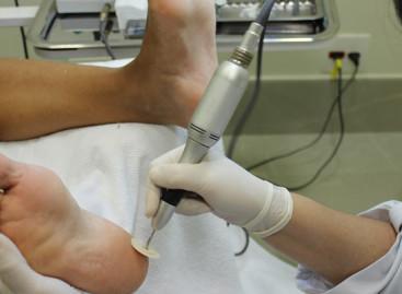 10 motivos para cuidar de seus pés