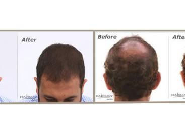 Saiba como disfarçar as falhas na raiz do cabelo