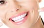 Dentes amarelos: como evitar e tratar
