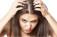 A caspa pode estar associada ao estresse