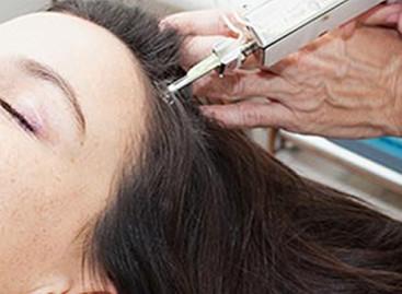 Intradermoterapia capilar contra a queda de cabelo