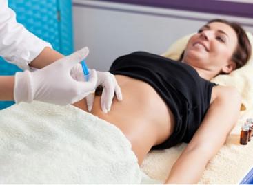 Mesoterapia: receita certa contra a barriguinha
