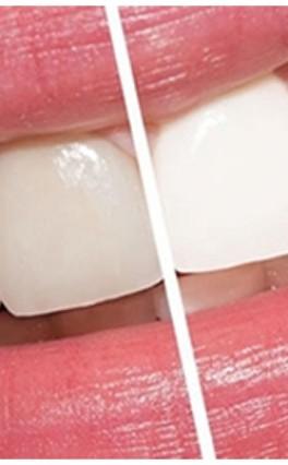 Principais dúvidas sobre o clareamento dentário