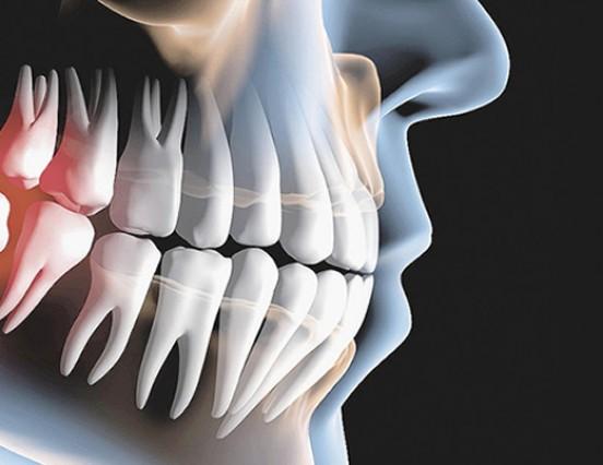 Mitos e verdades sobre o dente siso