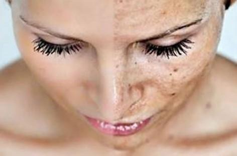 Como proteger a pele da exposição solar